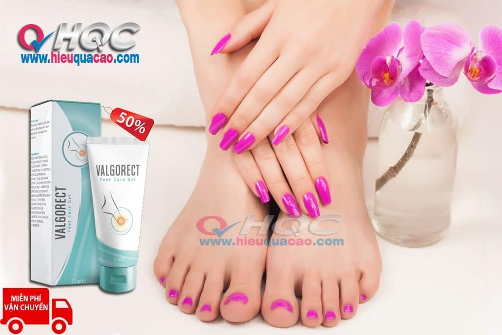 Gel Valgorect điều trị vẹo ngón chân cái hiệu quả